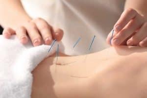 Frau bekommt Akupunktur